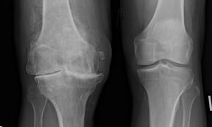 Osteoarthritis Encore Rehab