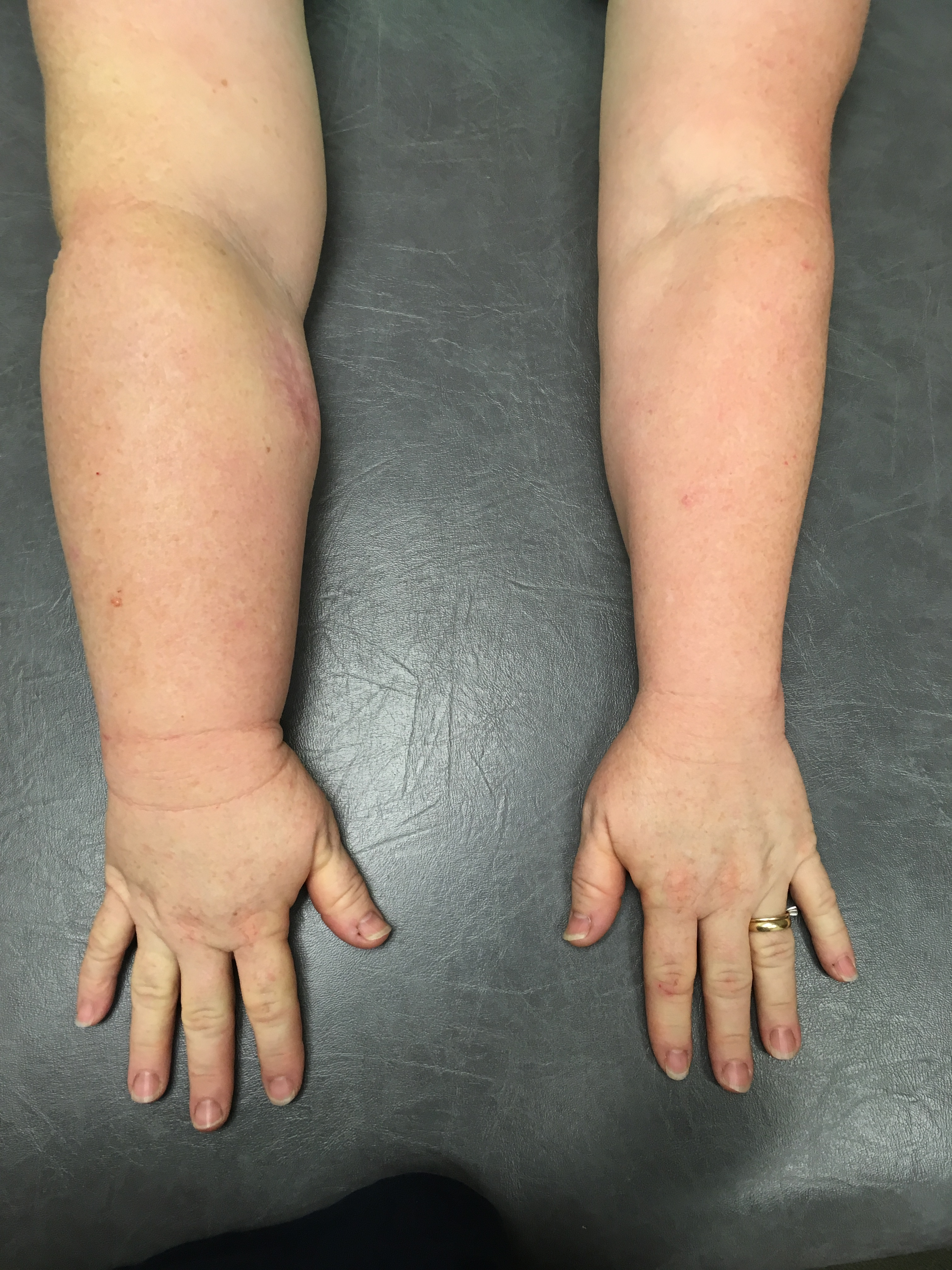 Lymph arm.jpg