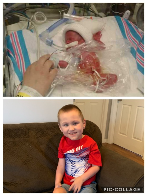 Happy National Prematurity Awareness Month to Noah Wilson with #EncoreRehab - Cullman!
